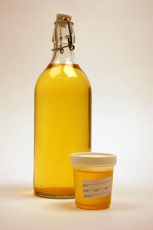 urine couleur verte