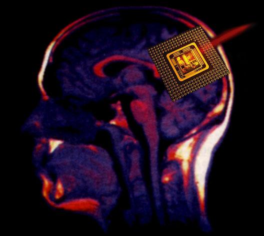 Implant neuronal