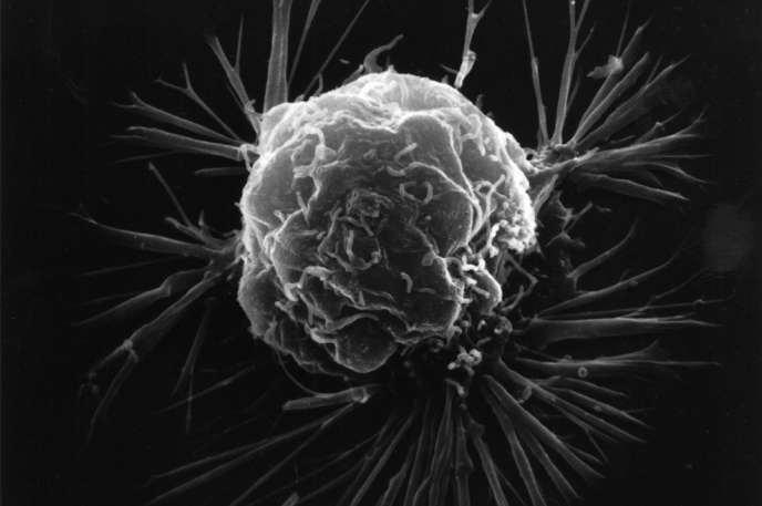 Cellules cancer