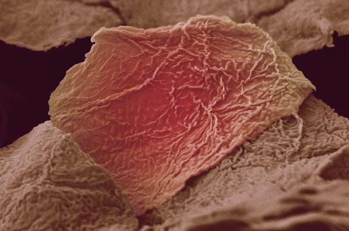 Cellules de peau brulées