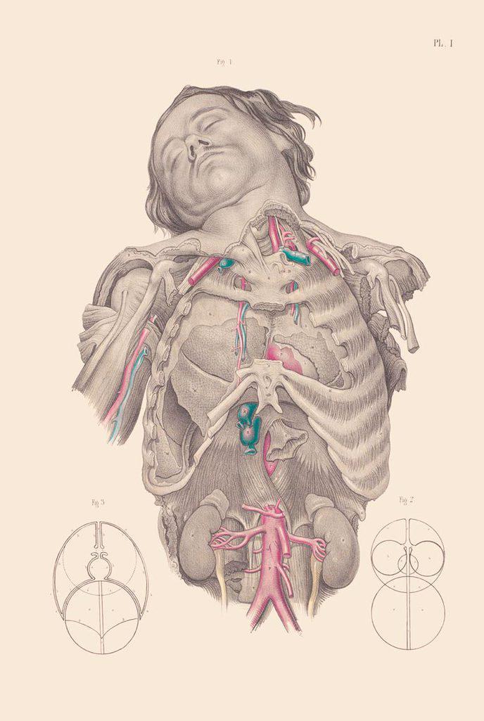 chirurgie xviiie siècle