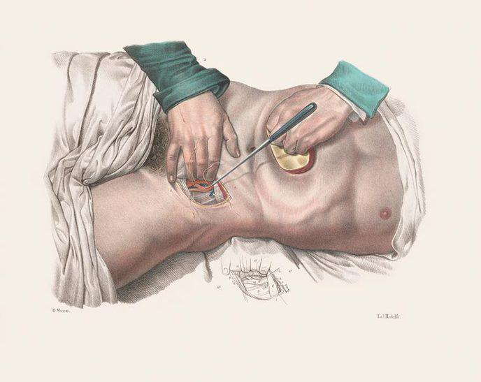 chirurgie 19e