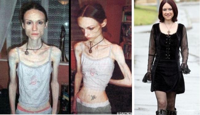 rencontre femme anorexique